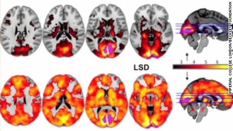 effects of lsd on human brain curnow intv_00003204.jpg