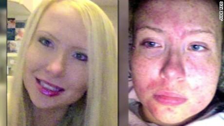 florida woman allergic sweat tears cholinergic urticaria dnt_00010402
