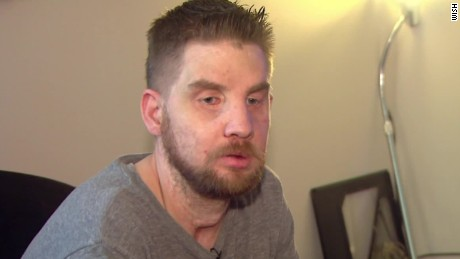 Face transplant recipient shares story after five years of silence