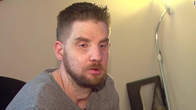 face transplant man shares story dnt_00010011.jpg