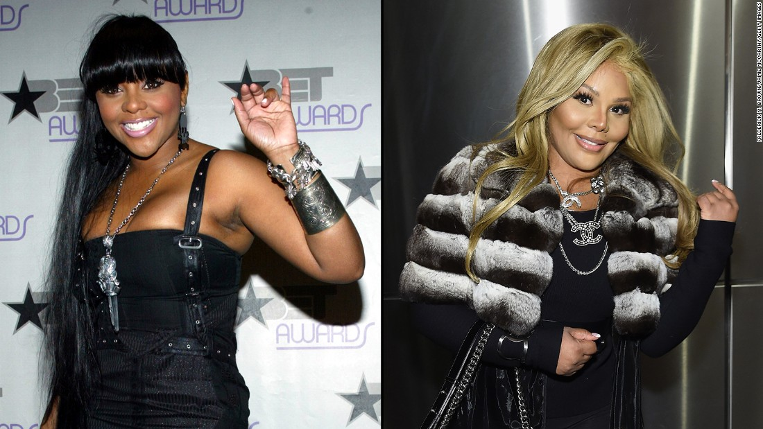 Lil' Kim, left, at a 2003 BET event, has stirred controversy over her changing appearance in the past, but these days she's unrecognizable -- and people are talking. Here are other celebrities who have dramatically changed their look: