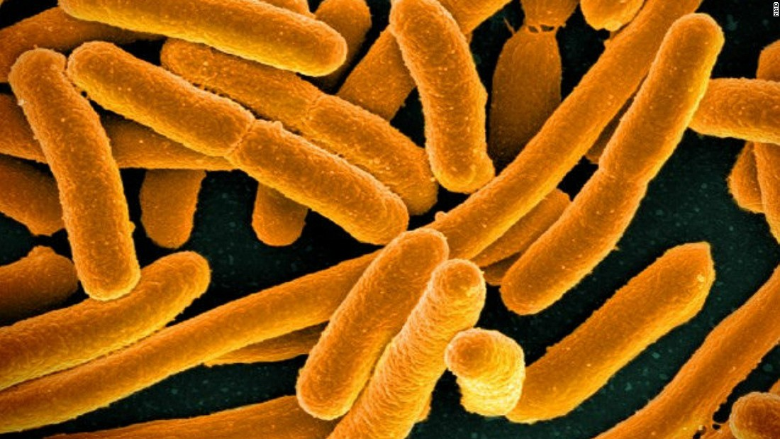 How To Treat E Coli Naturally