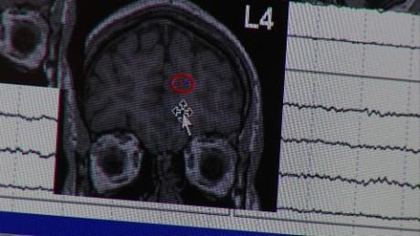 Epilepsy_00011509.jpg