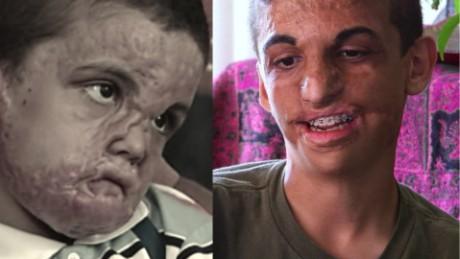 cnnee pkg damon arwa damon youssif nino sobreviviente guerra refugiado_00002828