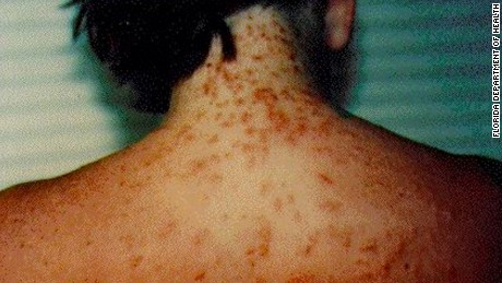 Sea Lice Invade Summer Waters In Gulf Coast Beaches
