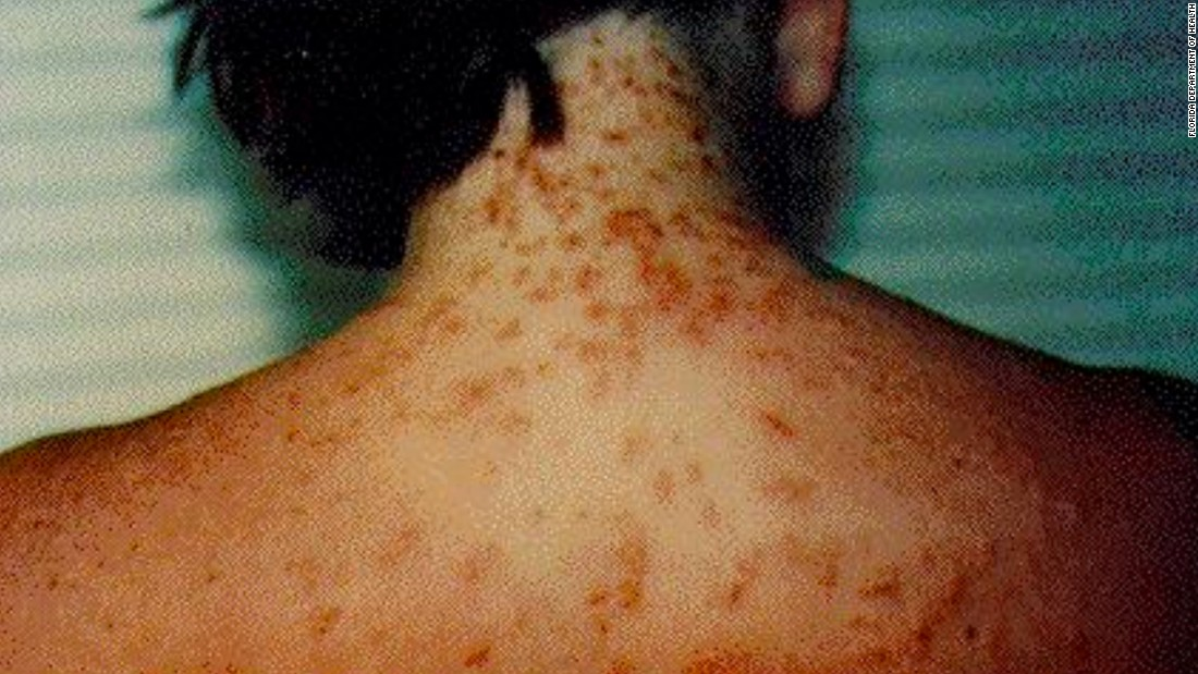 Sea lice, also known as seabather's eruption, can cause an itchy rash.