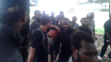 Papua New Guinea police open fire on student protest
