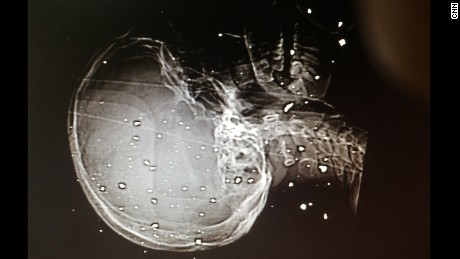 An X-ray showing shrapnel wounds to the skull and spine of a patient.