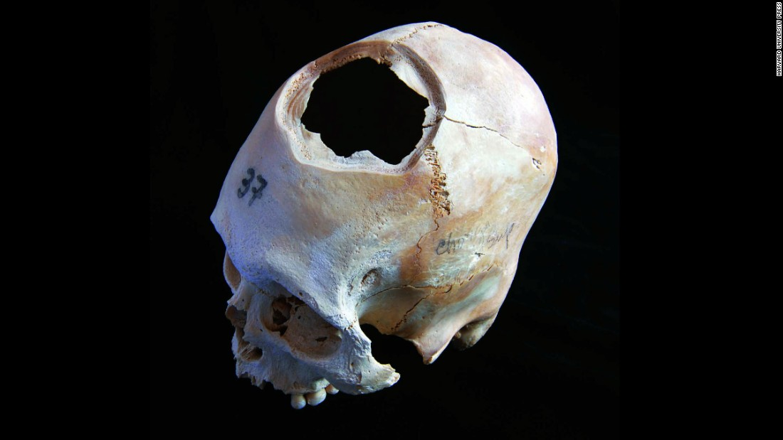 This skull is another example of early cranial surgery in Peru. Long-term survival rates were only 40%. Fewer than half the patients made it.