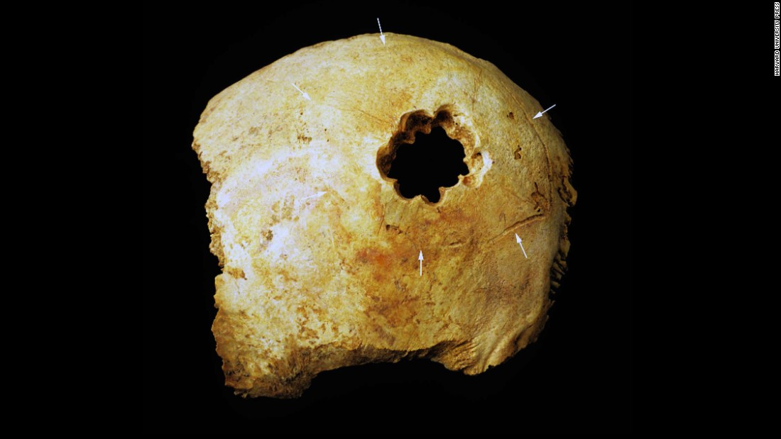 The hole in this skull was made by drilling a circle of smaller holes and then cutting away the bone between them. Of the four techniques used by Peru's ancient surgeons, it's the most similar to modern surgery. Today, to create a hole, often surgeons drill four smaller holes in a rectangle and then saw away the bone between them.