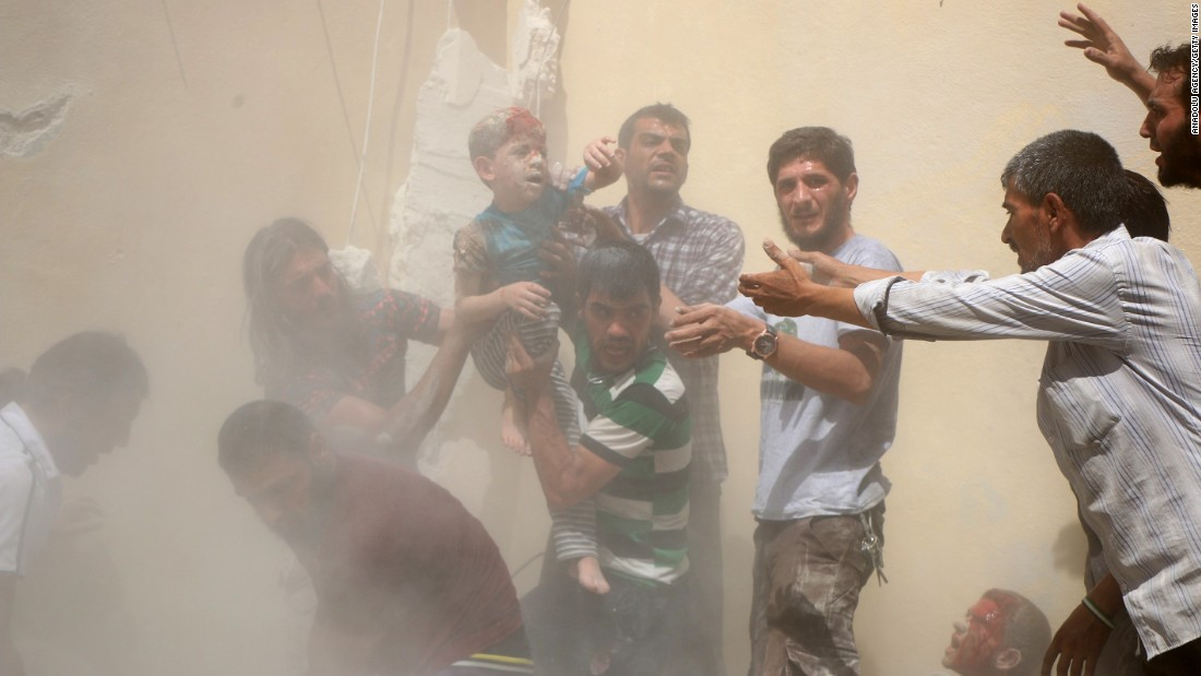 """A boy who was wounded in a bombing is carried in Aleppo, Syria, on Sunday, July 17. Aleppo <a href=""""http://www.cnn.com/2016/07/17/middleeast/syrian-army-road-aleppo/"""" target=""""_blank"""">has been a major battlefield in Syria</a> since 2010, with fierce fighting between rebel groups and regime forces."""