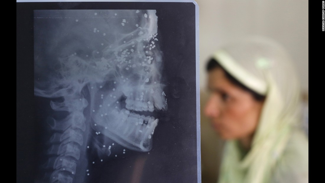An X-ray sheet shows pellet injuries on 14-year-old Insha Malik as a relative sits by her hospital bed in Srinagar, India, on Wednesday, July 20. Insha was hit by pellets while watching a protest. Dozens of people were killed and hundreds were injured after protests erupted in the disputed region of Kashmir earlier this month.