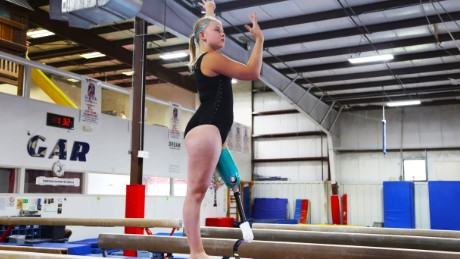 Despite losing her leg, Kate Foster is back in gymnastics and competing with her teammates.