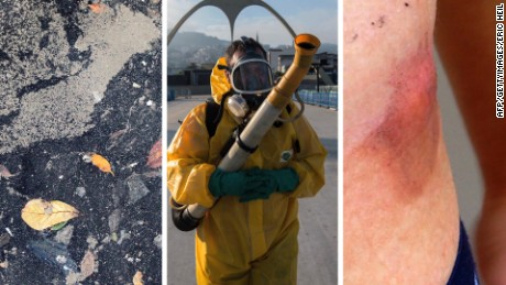 Polluted water, Zika and superbugs are three of the major health concerns at the Rio Olympics.