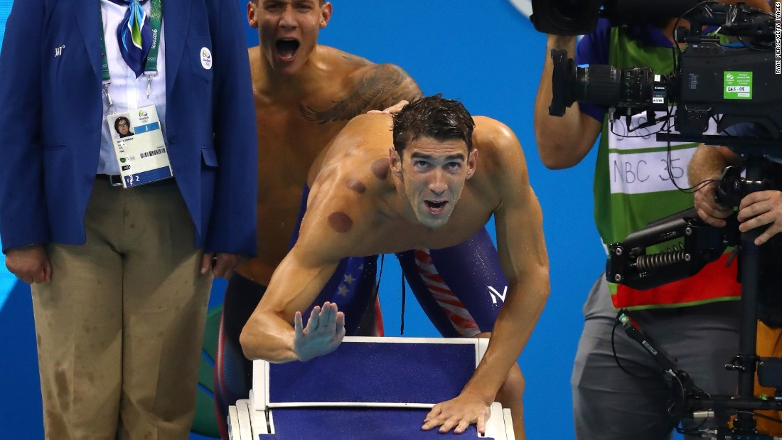 "Perfectly circular bruises are adorning the bodies of Olympians in Rio this summer -- particularly among swimmers such as Michel Phelps (pictured) -- after the sudden <a href=""http://www.cnn.com/2016/08/08/health/cupping-olympics-red-circles/index.html"">popularity of cupping</a>, an ancient therapy practiced as far back at the 6th century. But this is one of many treatments used throughout history that aimed to control the flow of fluid within the body.<br /><br />CNN spoke to Claudia Stein, professor of history at the University of Warwick, England, and Laurence Totelin, a historian of medicine at Cardiff University, Wales, to find out more about cupping and some of the more gruesome, but surprisingly commonplace, medical practices used to treat ailments throughout history."