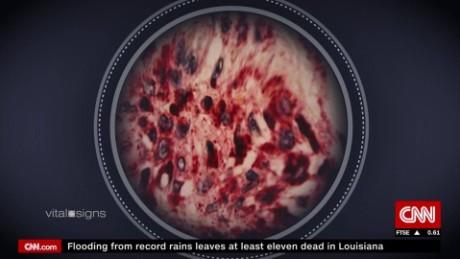 vital signs virus hunters spc c_00044011