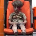 05 omran daqneesh aleppo syria