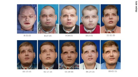 Firefighter and face transplant recipient Patrick Hardison's face has recovered with no rejection episodes.