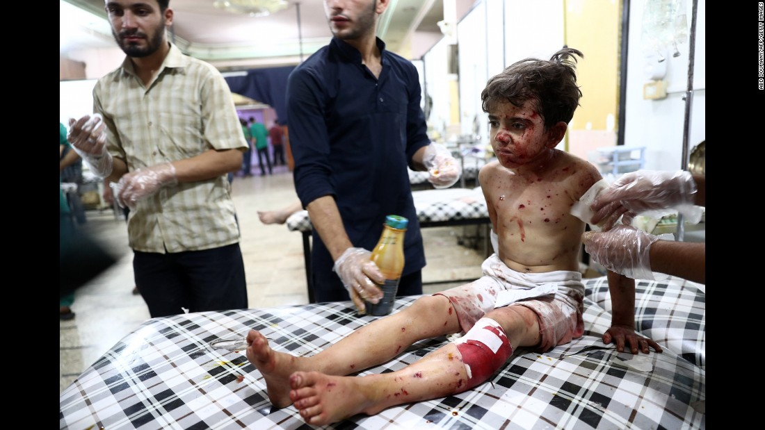"""A child receives treatment at a makeshift hospital after a reported airstrike in Douma, Syria, on Tuesday, August 23. Syria is in its fifth year of civil war, with the <a href=""""http://scpr-syria.org/publications/policy-reports/confronting-fragmentation/"""" target=""""_blank"""">Syrian Center for Policy Research estimating</a> the death toll at 470,000."""