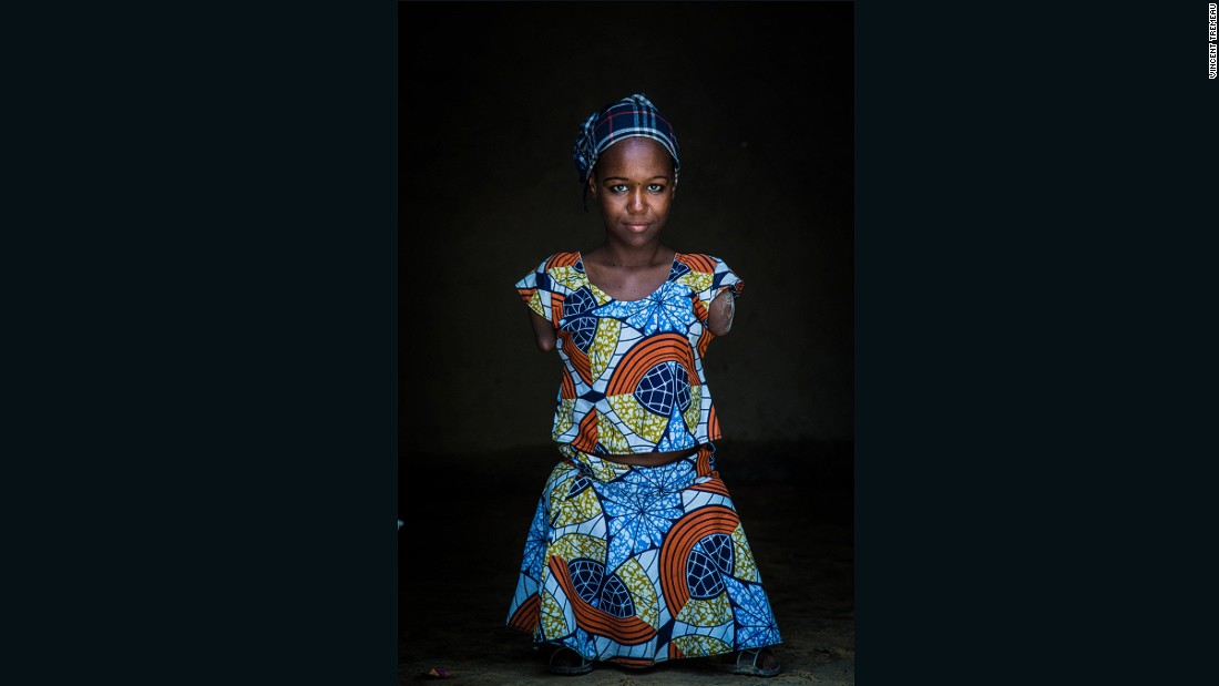 """Aicha (Lawyer), Niger. """"I come from Damassak in Nigeria. I would like to become a lawyer so I can defend people's rights. I was born with a disability, but I tend to forget about my handicap because I want to achieve my goal in life. I have been a refugee in Niger for 8 months now. I am happy here""""."""