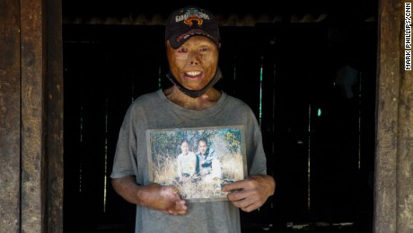Yei Yang holds a picture of him and his wife before he was seriously injured by an unexploded bomb dropped during America's secret war in Laos.