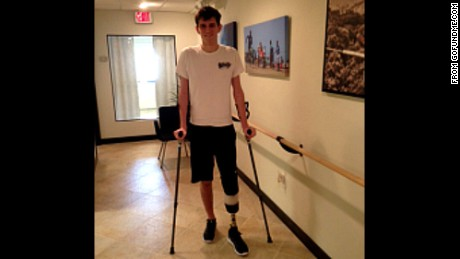 Connor Golden, 18, was injured in an explosion in Central Park this summer, and is now walking with the help of a prosthetic leg.