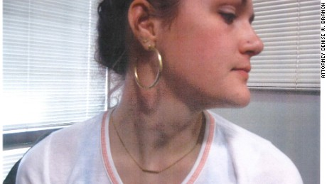 Delaney Robinson's attorney provided this photo purportedly taken on the night of the attack showing what the lawyer said was bruising on Robinson's neck.