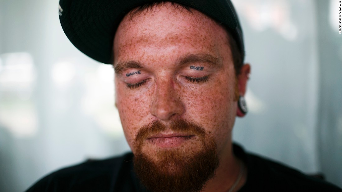 "James Blevins, 28, has ""Game Over"" tattooed on his eyelids. Blevins has been sober for four months and lives in one of The Lifehouse recovery homes in Huntington."