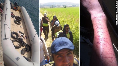 Left: A boat similar to the one Batal took from Turkey to Greece. Center: Walking through Greece to the Macedonian border. Right: The young man's legs covered in scratches after attempting to scale a razor wire fence into a Calais train station.