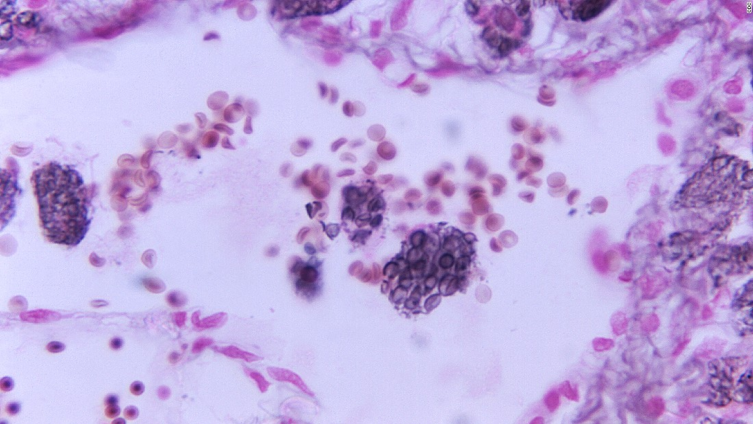 "The fungus <a href=""http://www.microbiologysociety.org/policy/briefings.cfm/publication/human-fungal-diseases"" target=""_blank""><em>Cryptococcus</a></em> can be found all around the world, and most of us are likely to breathe it in at some point in our lives. But it also causes Cryptococcal meningitis, a leading cause of death for HIV/AIDS patients in sub-Saharan Africa."