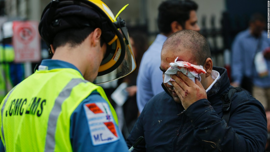 A man hurt in the crash is treated for a facial injury.