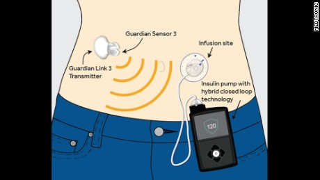 The Medtronic MiniMed 670G system