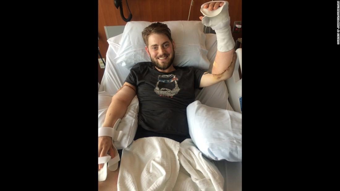 Peck's bilateral arm transplant surgery was successful, surgeons said.