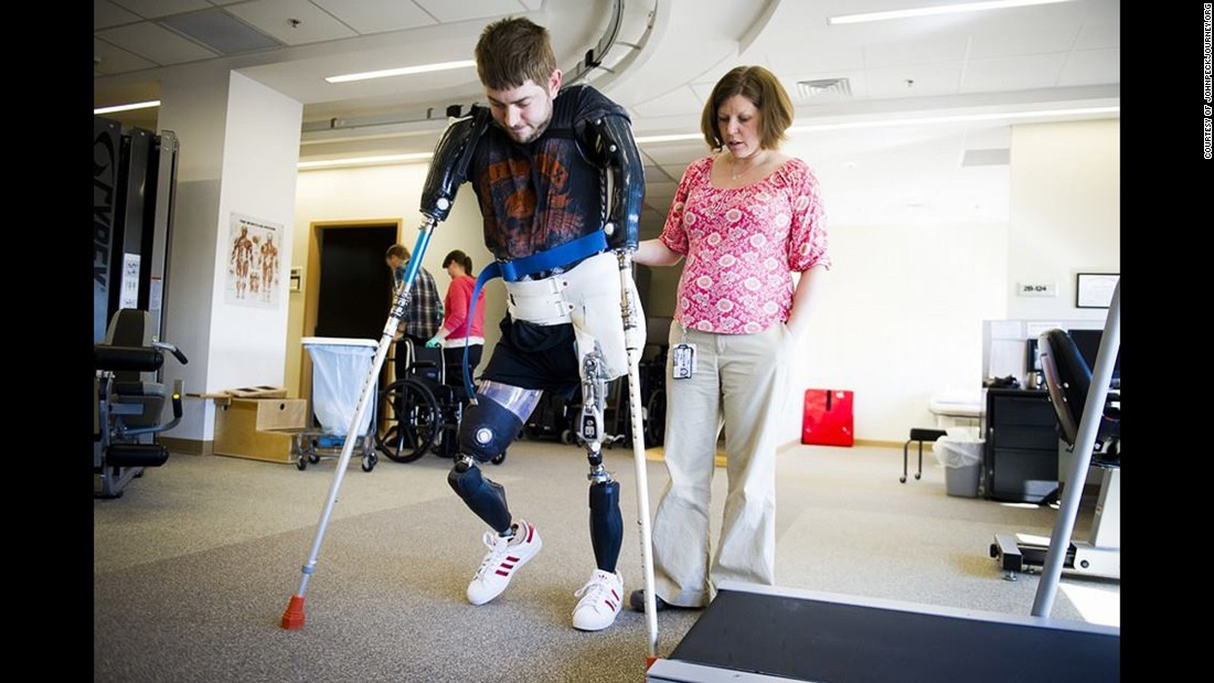 Peck received prosthetics and recovered in a rehab facility after the explosion.