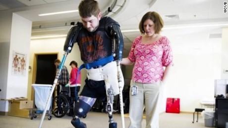 Veteran gets double arm transplant
