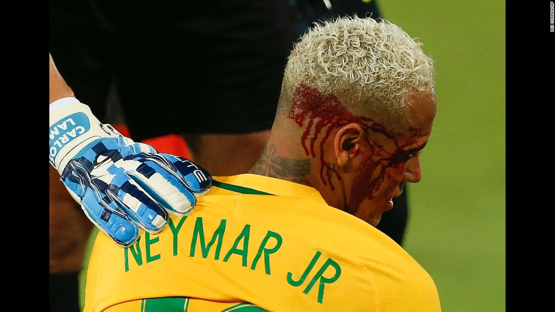 Brazilian soccer star Neymar caught an elbow to the face during a World Cup qualifying match against Bolivia on Thursday, October 6. He had to come out of the game, but Brazil still won 5-0.