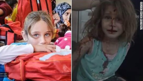 Activists posted a poster shows two images (Attached) before and after. First image show the little girl, Aya, at her School in the town of Talbiseh. The picture was taken on Sunday ( Oct 9,2016) , juts a day before an airstrike hit her house. The second image shows Aya at the hospital after an airstrike hit her house Monday Oct 10,2016