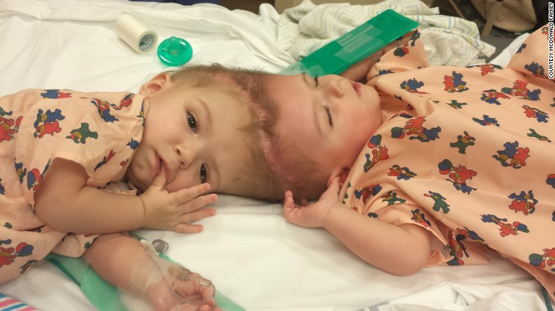 Only one out of every 2.5 million live births results in twins conjoined at the head. But 80% of them die of medical complications by the age of 2 if not separated.