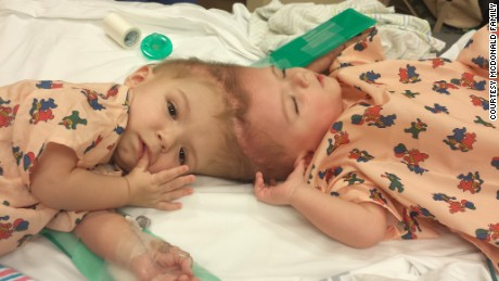 Conjoined twins separated, both out of surgery