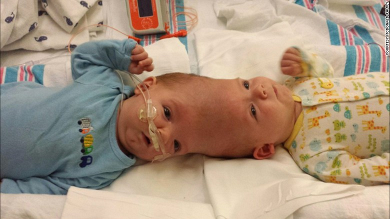 "Anias and Jadon McDonald were born conjoined at the head on September 9, 2015, via an unscheduled C-section. ""They were normal little boys, like any other two little babies you would see,"" said their father Christian McDonald, ""except for being conjoined."""