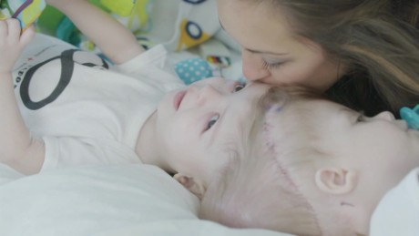 Conjoined Twin Boys Separated in Rare Surgery