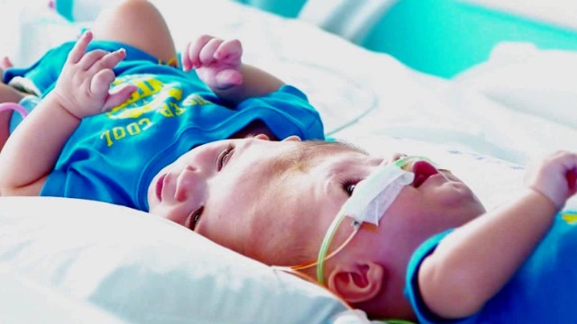 Afbeelding bij Formerly conjoined twins now in recovery