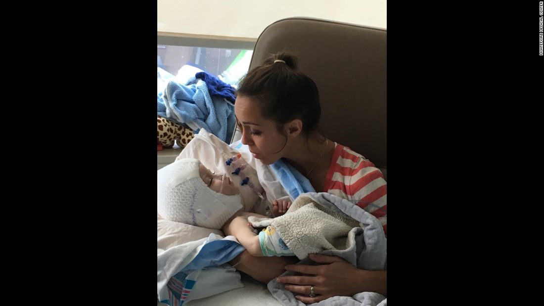 Nicole McDonald comforts son Jadon a week after surgery to separate him from his brother Anias.