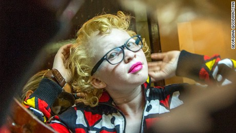 "The world's first ever Mr and Miss Albinism held in Nairobi on 21 Oct 2016. Organised by the Albinism Society of Kenya (ASK) in an effort to fight the stigma associated with albinism under the banner ""Beauty Beyond The Skin"" was held at the Carnivore grounds with Deputy President William Ruto as the chief guest. Money raised through the event will go to support other existing programs including cancer treatment, counselling and be used for the provision of sunscreen lotion which helps in prevention of skin cancer. 
