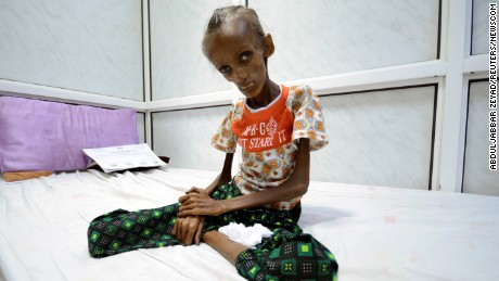 Saida Ahmad Baghili, 18, who is affected by severe acute malnutrition, sits on a bed at the al-Thawra hospital in the Red Sea port city of Houdieda, Yemen October 24, 2016. REUTERS/Abduljabbar Zeyad TPX IMAGES OF THE DAY (Newscom TagID: rtrleight313468.jpg) [Photo via Newscom]