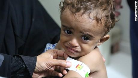 Yemen, 23 October 2016
