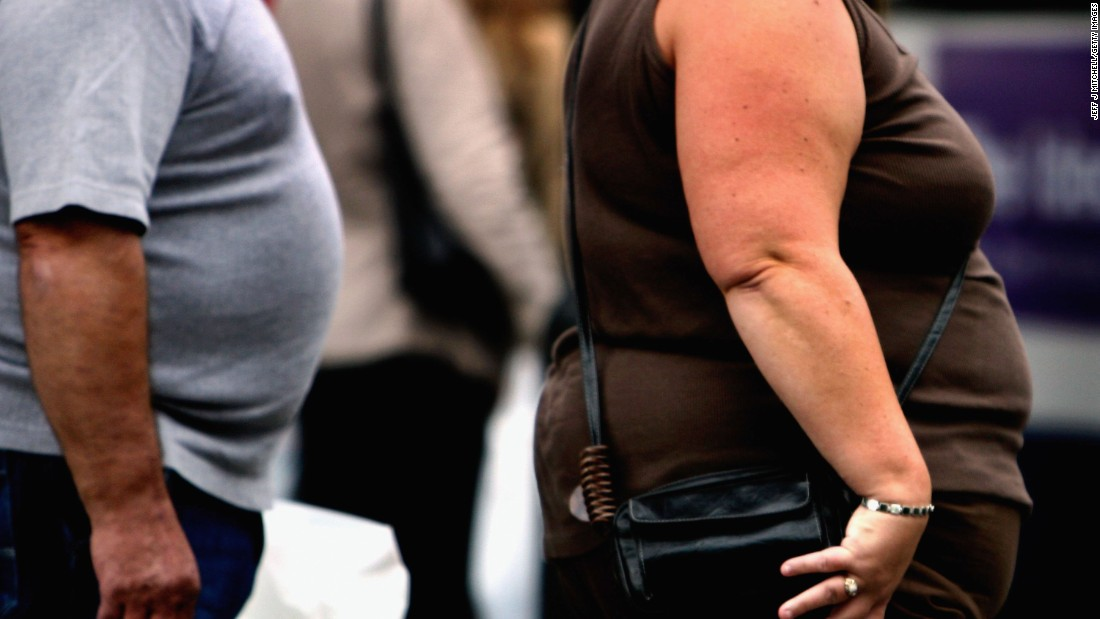Billions obese globally with US leading the way