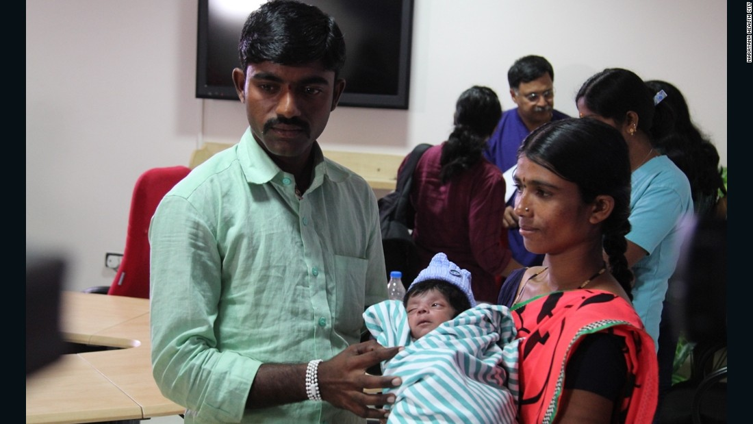 Indian boy born with 4 legs, 2 penises recovering after surgery