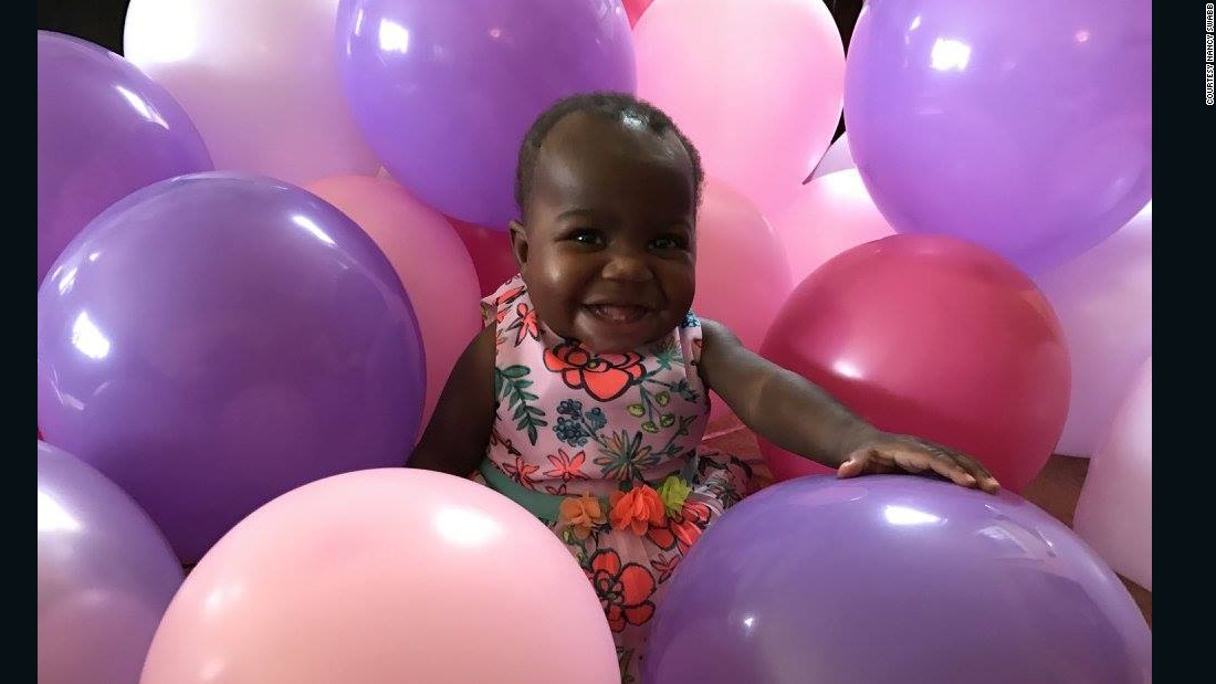 Baby Dominique reunited with family after surgery to remove parasitic twin
