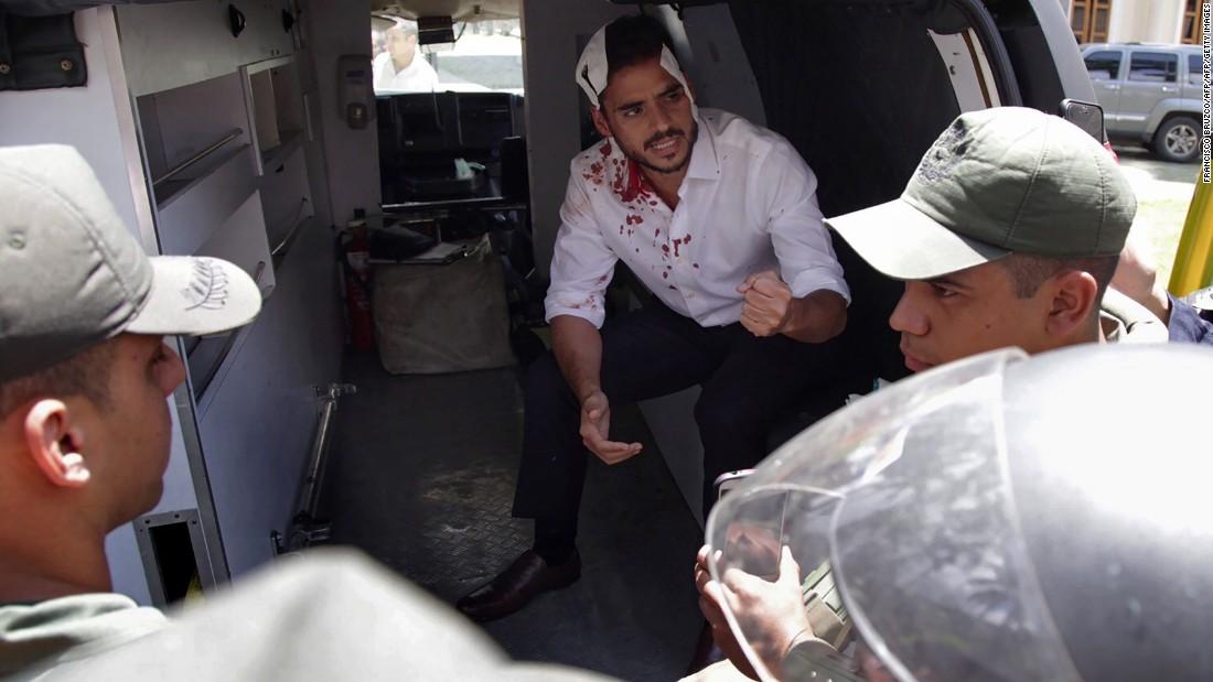 Lawmakers hurt in Venezuela clashes